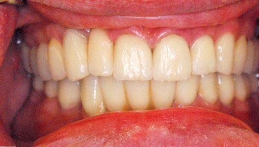 Комбинированное лечение. Костная пластика, закрытие рецессии десны и тотальное восстановление зубного ряда при помощи имплантатов и коронок из оксида циркония.