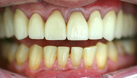 Гнатология и протезирование. Лечение хронической стираемости зубов, восстановление высоты прикуса при помощи разобщающей шины и протезирование металлокерамическими коронками.