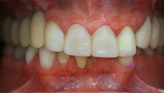 Эстетическая стоматология. Восстановление верхних резцов и клыков керамическими винирами.