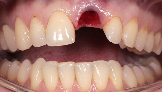 Протезирование на имплантатах. Восстановление зубного ряда после перелома корня зуба.