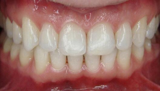 Ортодонтия. Исправление прикуса с помощью брекет-системы.