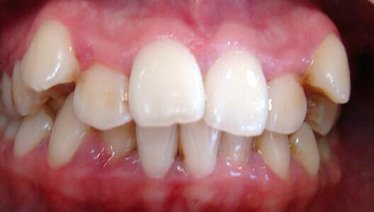 Ортодонтия. Исправление прикуса при помощи брекет-системы.