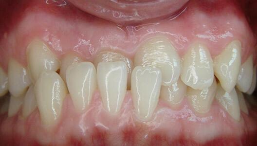 Ортодонтия. Расширение верхней челюсти при помощи небной пластины. Исправление прикуса и выравнивание зубного ряда с помощью брекет-системы.