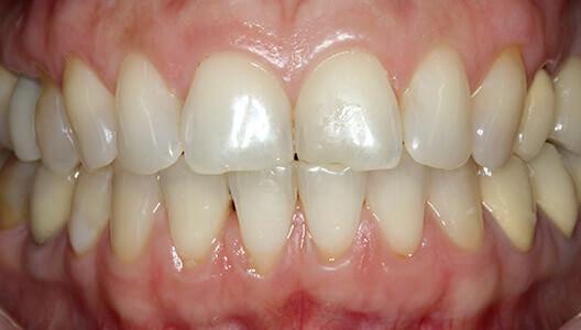 Эстетическая стоматология. Восстановление зоны улыбки винирами из диоксида циркония.