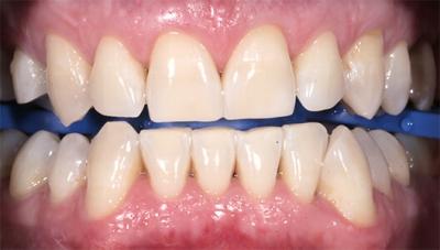 Эстетическая стоматология. Отбеливание зубов по технологии Zoom 4.