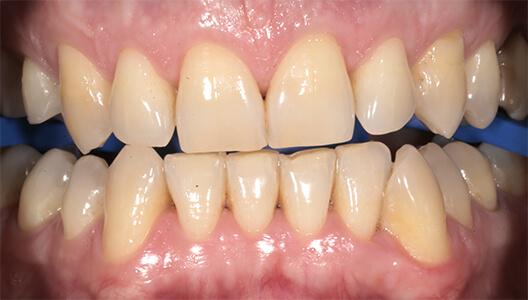 Отбеливание зубов по технологии Zoom 4.