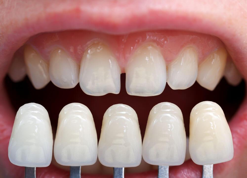 """Художественная реставрация зубов в Стоматологии """"Бюро 32"""""""