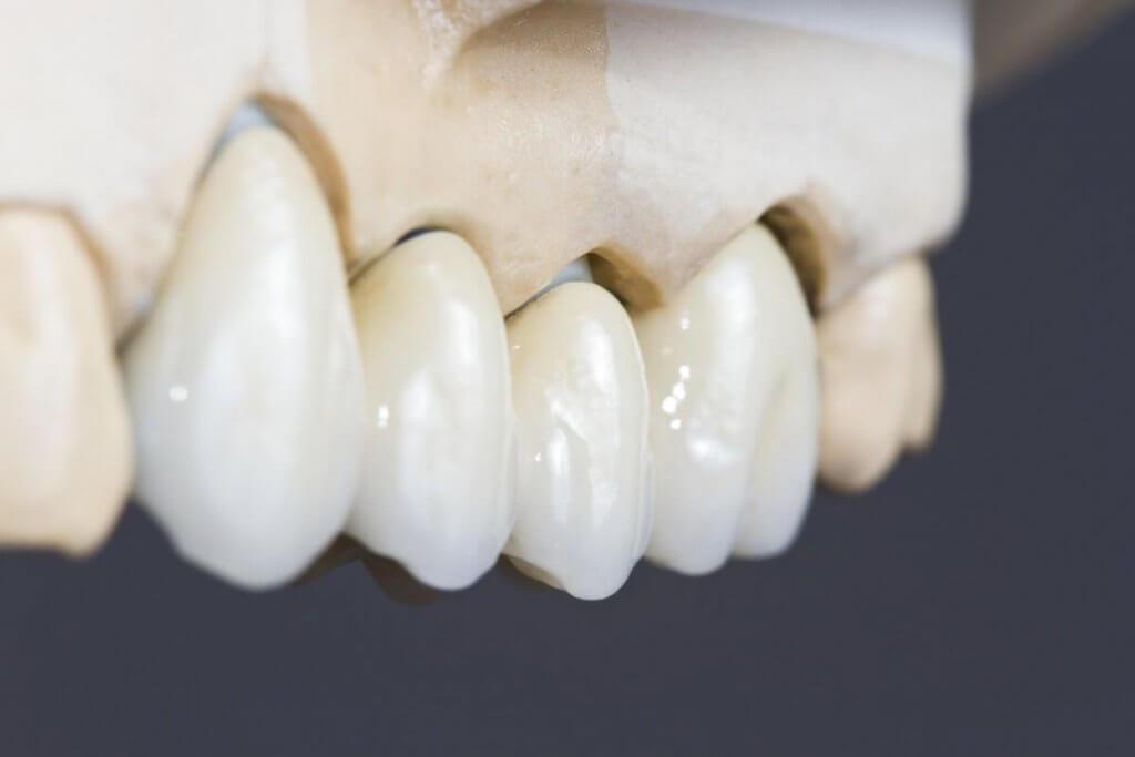 """Коронки из металлокерамики в Стоматологии """"Бюро 32"""""""
