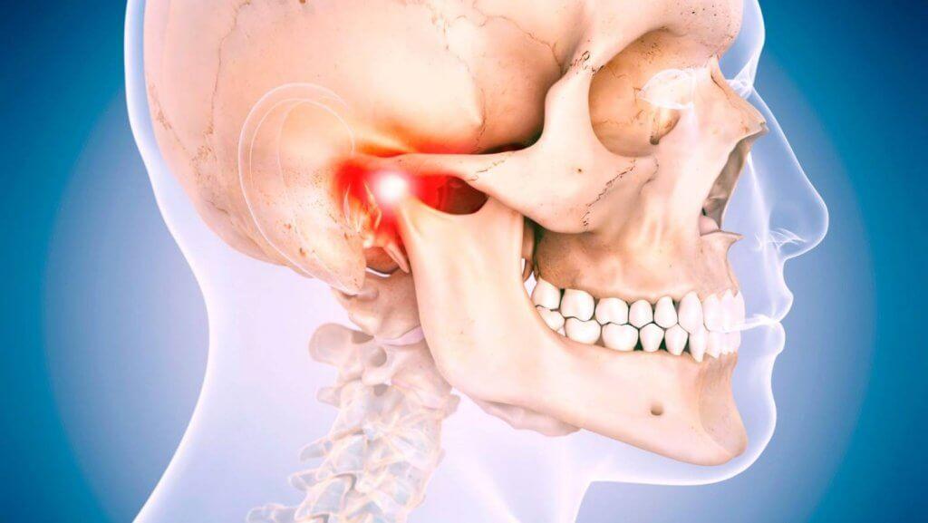 """Лечение дисфункции ВНЧС в Стоматологии """"Бюро 32"""""""