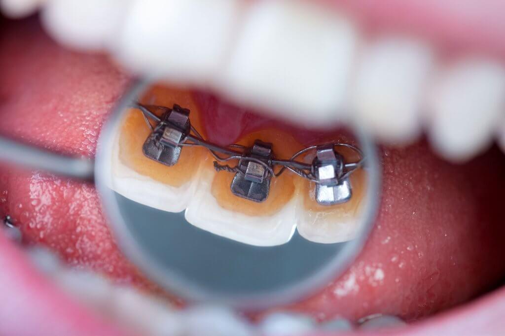 """Ортодонтическое лечение в Стоматологии """"Бюро 32"""""""