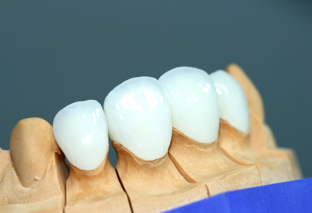 """Виниры на передние зубы. Стоматология """"Бюро 32"""""""