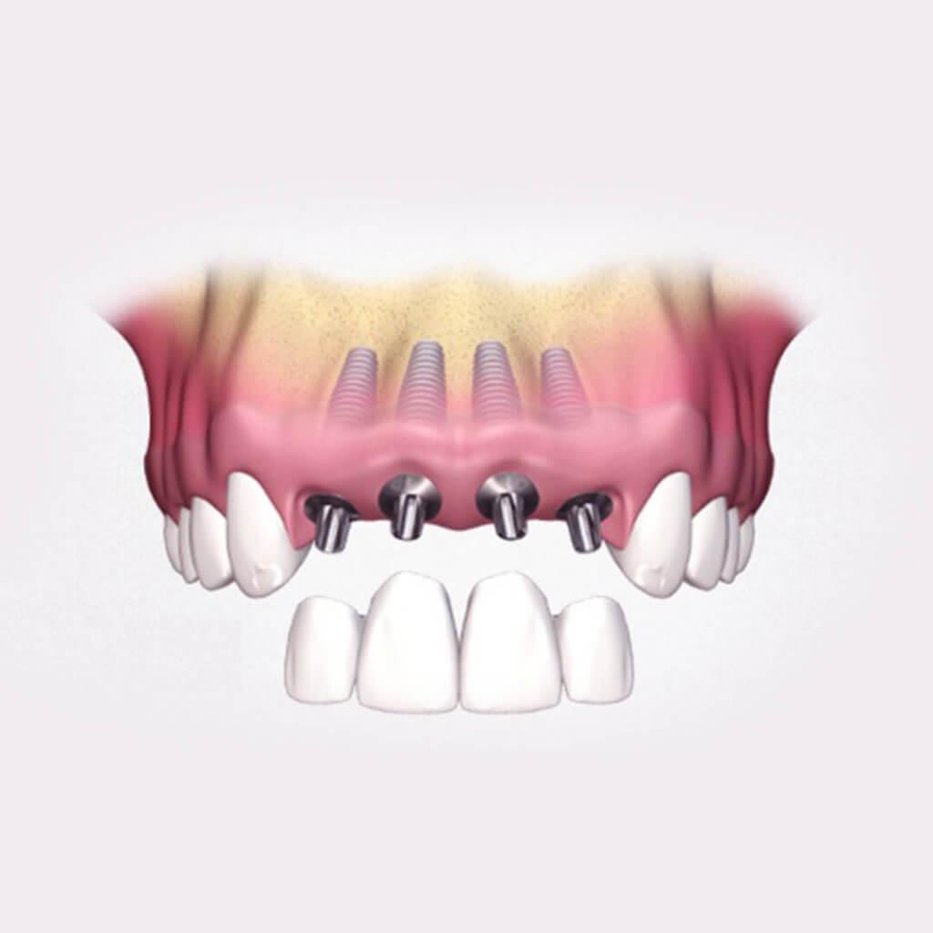 """Протезирование передних зубов. Стоматология """"Бюро 32"""""""