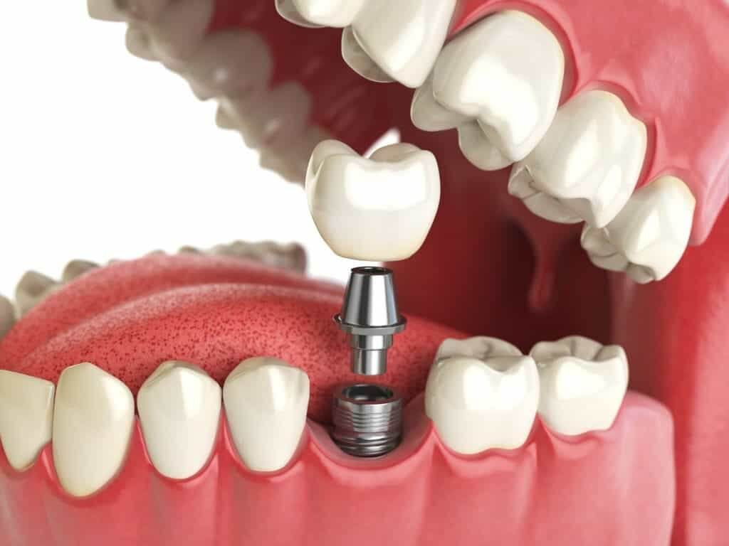 """Протезирование зубов. Стоматология """"Бюро 32"""""""