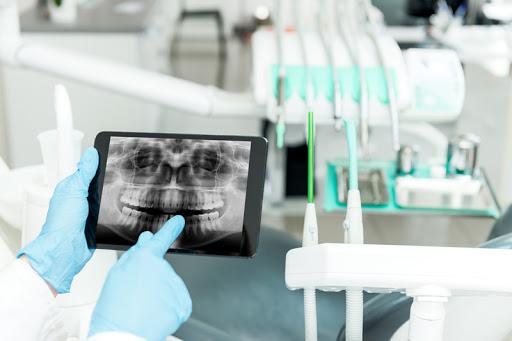 """Рентген и компьютерная томография. Стоматология """"Бюро 32"""""""