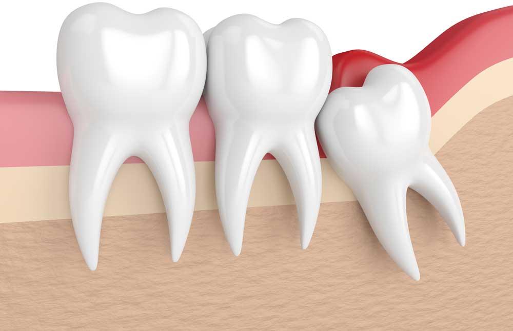 """Удаление зубов мудрости в Стоматологии """"Бюро 32"""""""