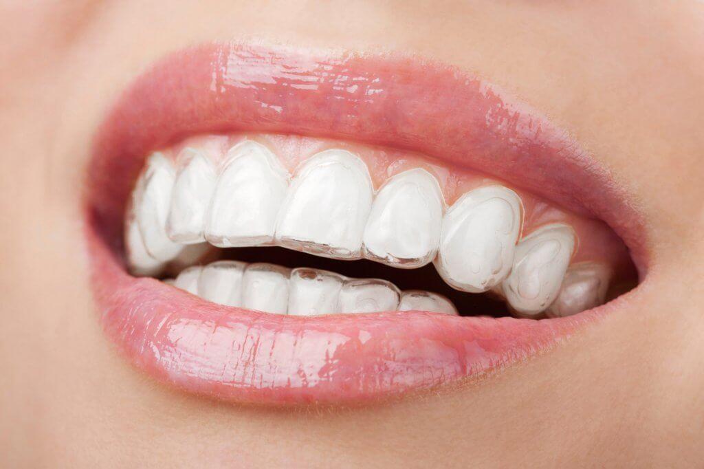 """Выравнивание зубов капами Invisalign в Стоматологии """"Бюро 32"""""""