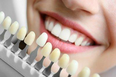 """Отбеливание зубов в Стоматологии """"Бюро 32"""""""