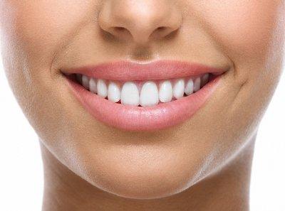 """Безопасное отбеливание зубов в Стоматологии """"Бюро 32"""""""