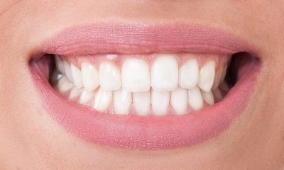 """Экспресс отбеливание зубов в Стоматологии """"Бюро 32"""""""