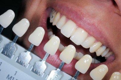 """Косметическое отбеливание зубов в Стоматологии """"Бюро 32"""""""