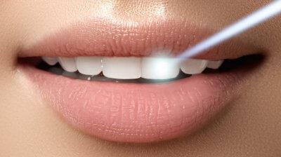 """Лазерное отбеливание зубов в Стоматологии """"Бюро 32"""""""