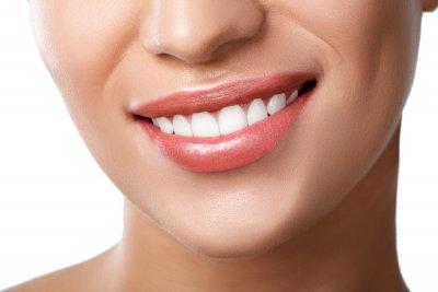 """Профессиональное отбеливание зубов в Стоматологии """"Бюро 32"""""""