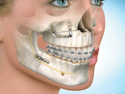"""Хирургическое исправление прикуса в Стоматологии """"Бюро 32"""""""