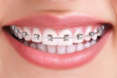 """Лечение брекетами на одну челюсть в Стоматологии """"Бюро 32"""""""