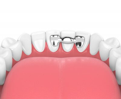 """Шинирование зубов в Стоматологии """"Бюро 32"""""""