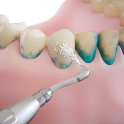 """Отбеливание зубов Air Flow в Стоматологии """"Бюро 32"""""""