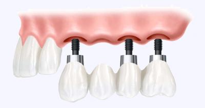 """Установка моста на имплантах на 4 зуба в Стоматологии """"Бюро 32"""""""