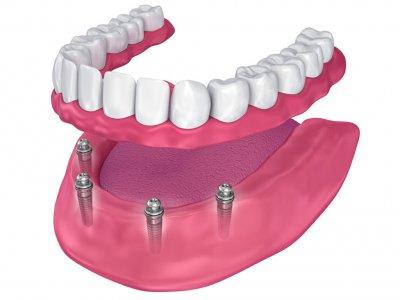 """Протезирование на имплантах при полном отсутствии зубов в Стоматологии """"Бюро 32"""""""