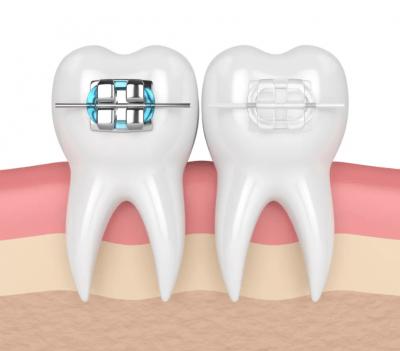 """Выравнивание зубов в Стоматологии """"Бюро 32"""""""