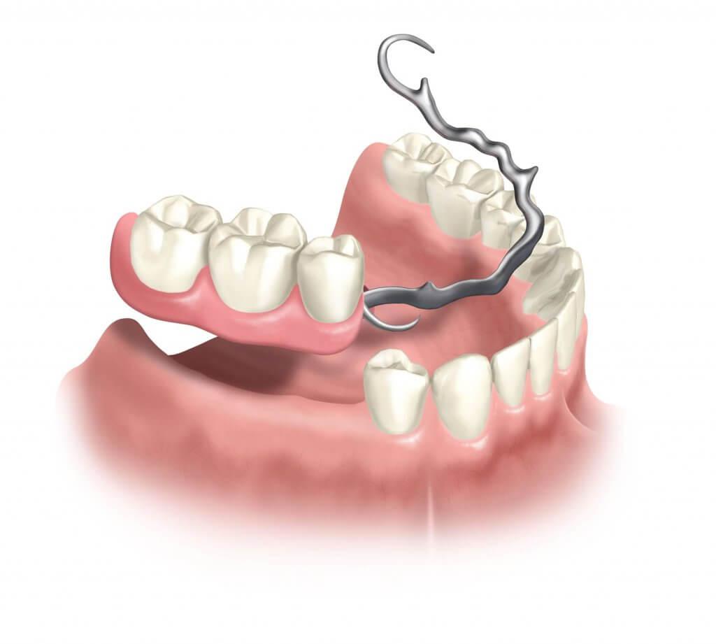 """Протезирование жевательных зубов в Стоматологии """"Бюро 32"""""""