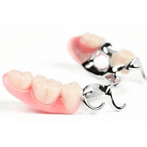 """Установка бюгельных зубных протезов в Стоматологии """"Бюро 32"""""""