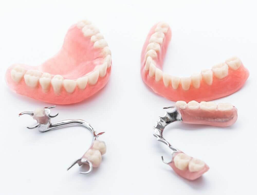 """Установка зубных протезов недорого в Стоматологии """"Бюро 32"""""""