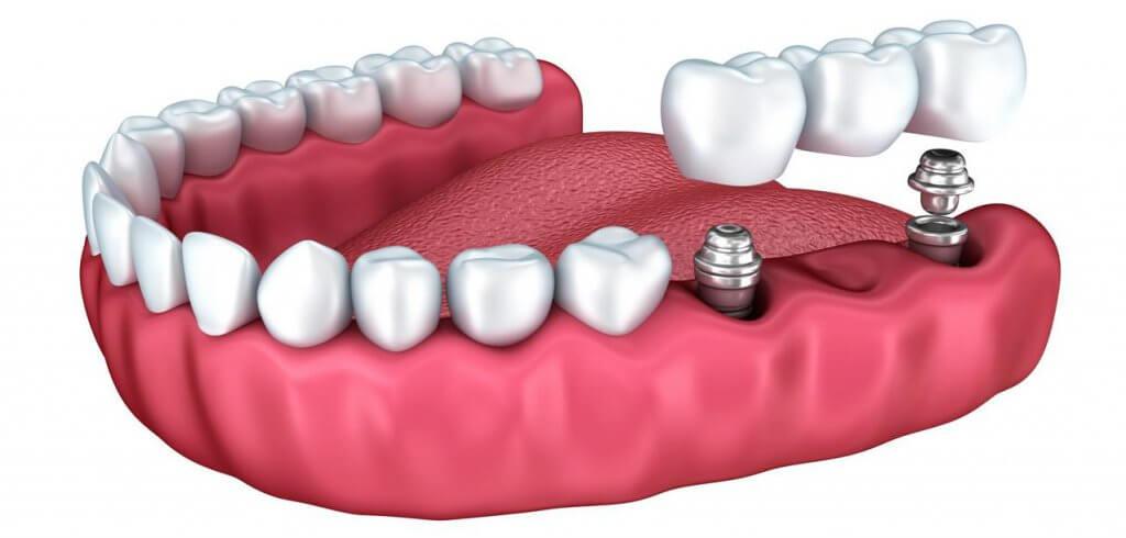 "Установка несъемного зубного протеза на имплантах в Стоматологии ""Бюро 32"""