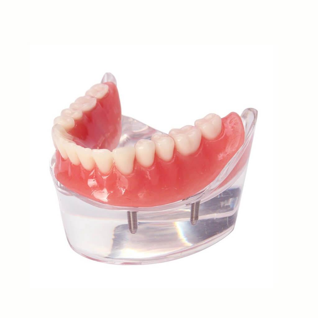 """Протезирование нижних зубов в Стоматологии """"Бюро 32"""""""