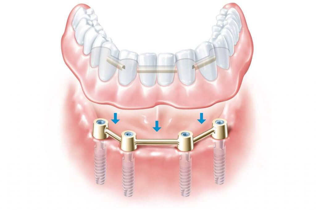 """Протезирование при полном отсутствии зубов в Стоматологии """"Бюро 32"""""""