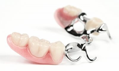Установка бюгельных зубных протезов на верхнюю челюсть в Стоматологии Бюро 32