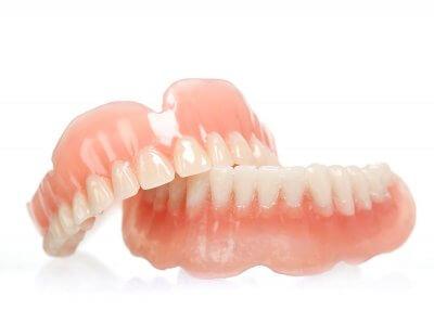 Установка полных зубных протезов в Стоматологии Бюро 32