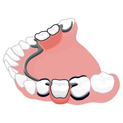 Изготовление съемных бюгельных протезов на замках аттачменах в стоматологии Бюро 32