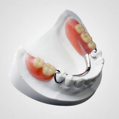 Установка бюгельных протезов на нижнюю челюсть в Стоматологии Бюро 32