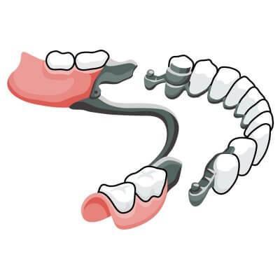 Замена утраченных зубов установкой бюгельного протеза на замках в стоматологии Бюро 32