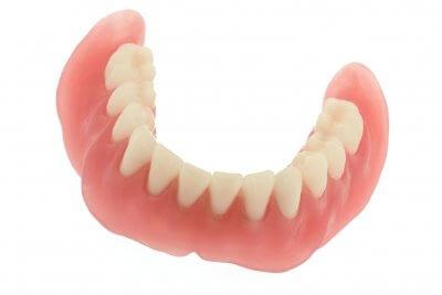 Установка зубного протеза на присосках в Стоматологии Бюро 32
