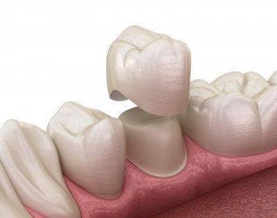 Установка металлокерамической коронки на передний зуб в Стоматологии Бюро 32