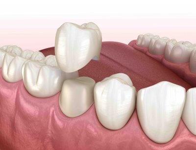 Установка металлокерамики на зуб в Стоматологии Бюро 32