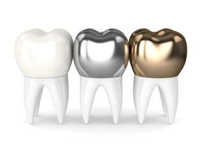Установка коронки на коренной зуб в Стоматологии Бюро32