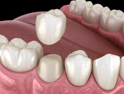 Установка коронки на передний зуб в Стоматологии Бюро 32