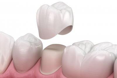 Установка коронки на жевательный зуб в Стоматологии Бюро 32